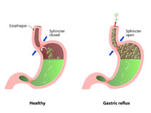 Belching, Heartburn or reflux vector illustration