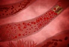 Belemmerde Slagader met plaatjes en cholesterolplaque, concept voor gezondheidsrisico voor zwaarlijvigheid of het op dieet zijn e royalty-vrije stock foto's