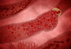 Belemmerde Slagader met plaatjes en cholesterolplaque, concept voor gezondheidsrisico voor zwaarlijvigheid of het op dieet zijn e stock afbeelding