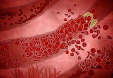 Belemmerde Slagader met plaatjes en cholesterolplaque, concept voor gezondheidsrisico voor zwaarlijvigheid of het op dieet zijn e stock foto's
