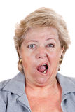 Bell's Palsy - lopsided screaming. Mature woman with Bell's Palsy screaming with only half her face Stock Image