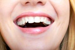 Bella bocca di risata di una donna fotografia stock libera da diritti