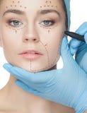 Bella giovane donna con le righe di perforazione sul suo fronte prima del funzionamento della chirurgia plastica Fotografia Stock