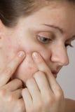 Bella ragazza con acne sul suo fronte e sulla parte posteriore su un whi immagini stock