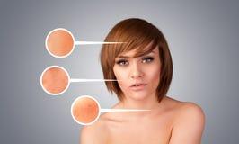 Bella ragazza con i segni facciali della freccia di cura dello sci nocivo Fotografia Stock Libera da Diritti