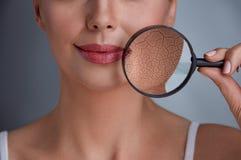 Belle femme avec un problème sur la peau images libres de droits