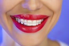 Belle fille de sourire avec l'arrêtoir pour des dents, plan rapproché (sur un b Photo libre de droits