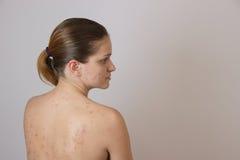 Belle jeune fille avec l'acné sur son visage et le dos sur un whi Photo libre de droits