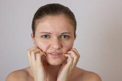 Belle jeune fille avec l'acné sur son visage et le dos sur un whi Photographie stock libre de droits