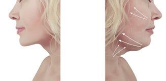 Bello collage di ringiovanimento del doppio mento della donna prima e dopo le procedure della liposuzione fotografia stock