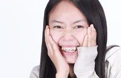 Bello sorriso con i ganci estetici Immagine Stock