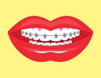 Bello sorriso con i ganci estetici Fotografia Stock Libera da Diritti