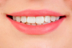 Bello sorriso con i teeths bianchi Fotografia Stock Libera da Diritti