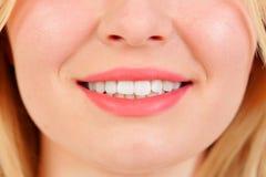Bello sorriso con i teeths bianchi Fotografia Stock