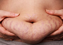 Belly with stretch marks Royalty Free Stock Photography