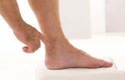 Bemannen Sie das Zeigen von Krampfadern Nahaufnahme, Fuß auf modularem Badschritt Lizenzfreies Stockfoto