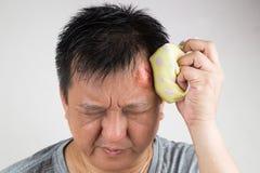 Bemannen Sie die Behandlung seines verletzten schmerzlichen geschwollenen Stirnstoßes mit icep Lizenzfreies Stockfoto