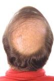 Bemant kaal hoofd upclose Stock Fotografie