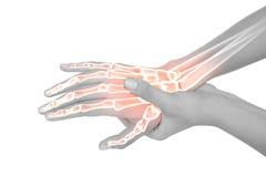 Benadrukte beenderen van vrouw met handpijn stock foto