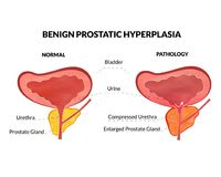Benign prostatic hyperplasia. Is an non lethal pathology with timely treatment Stock Photo
