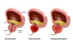 Benign Prostatic hyperplasia royalty free illustration