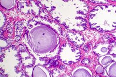 Benign prostatic hyperplasia. Micrograph shows dilated glands, papillary projections inside the lumen of the glands, cystic dilatation with accumulation of royalty free stock photo
