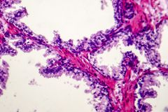 Benign prostatic hyperplasia. Micrograph shows dilated glands, papillary projections inside the lumen of the glands, cystic dilatation with accumulation of royalty free stock images