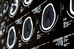 beräknad ct-tomography Royaltyfri Bild