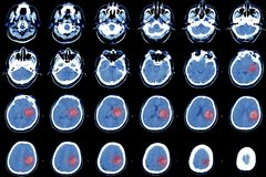Beräknad tomography av hjärnan, hemorrhagic slaglängd royaltyfri foto