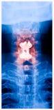 Berühren des Körpers Stockbilder