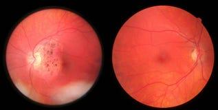 Beschadigd en gezonde retina - Royalty-vrije Stock Foto's