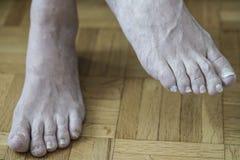 Beschadigde spijkers wegens paddestoel en atleten` s voeten stock fotografie