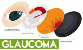 Beschreibendes Infographic, das einige Stadien der Glaukom-Krankheit, Vektor-Illustration zeigt vektor abbildung