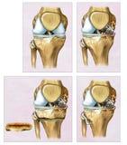 Beschrijvende illustratie een Osteotomy of een correctie van de knie waar het dijbeen en het scheenbeen bochtig lijken vector illustratie