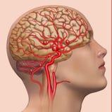 Beschrijvende illustratie van de ontwikkeling van het menselijke hersenaneurisma vector illustratie