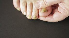 Besmettelijke paddestoel op de spijkers van de tenen van een mens stock videobeelden
