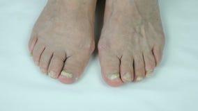 Besmetting van de Onychomycosis de schimmelspijker stock video