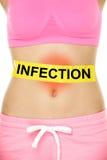 Besmettingswoord op maag wordt geschreven - lichaamsprobleem dat Stock Foto's
