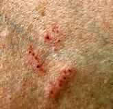 Besnoeiingen en krassen op de huid Wonden en schuring stock foto's