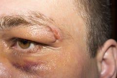 Besnoeiingswenkbrauw met een zwart oog Stock Afbeelding
