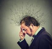Besorgter Mann mit besorgtem betontem Gesichtsausdruck und Gehirn, das in Linien schmilzt Stockbild