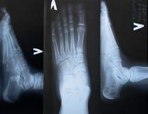 Betaalt op röntgenstraal Royalty-vrije Stock Foto's