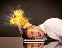 Betonter Geschäftsmann ` s Kopf brennt Stockbilder