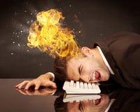 Betonter Geschäftsmann ` s Kopf brennt Lizenzfreies Stockbild