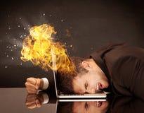 Betonter Geschäftsmann ` s Kopf brennt Lizenzfreie Stockbilder
