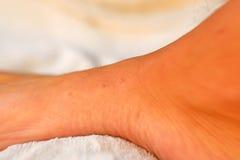 Bettprogrammfehlerbissen auf einem Fuß Lizenzfreies Stockbild