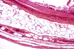 Biała adipose tkanka obrazy stock