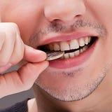 biały mężczyzna zęby Fotografia Stock