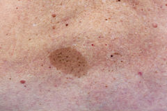 Big birthmark on woman back Royalty Free Stock Photography