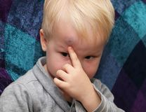 A big bruise on the forehead of a little boy stock photo